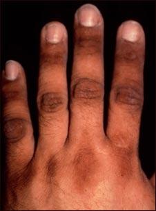 кожни заболявания