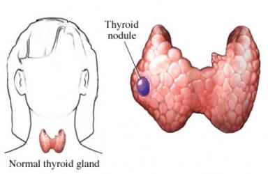 образувания на щитовидната жлеза