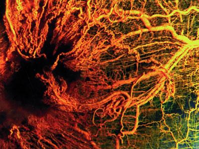 възпаление на кръвоносните съдове