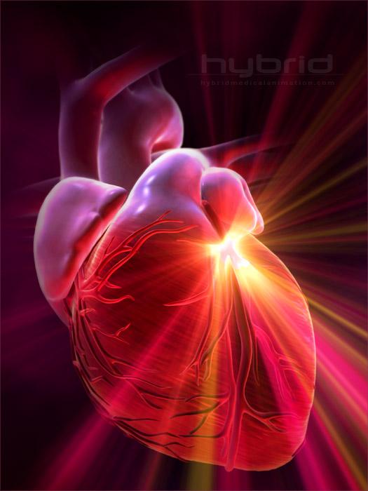 сърчечносъдови проблеми