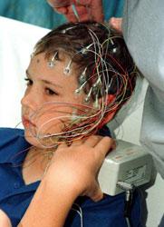 Специалисти обсъждат детската епилепсия