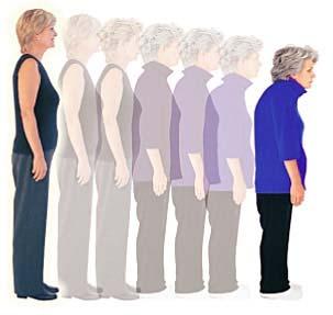 Близо 800 хиляди българки страда от остеопороза и остеопения