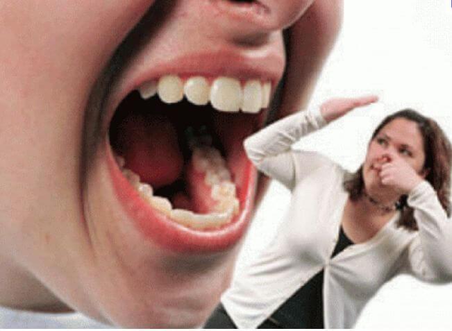 Бактериите в устата причиняват тежки заболявания
