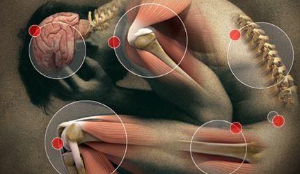 Какъв е механизмът на острото възпаление?