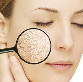 природни продукти за суха кожа