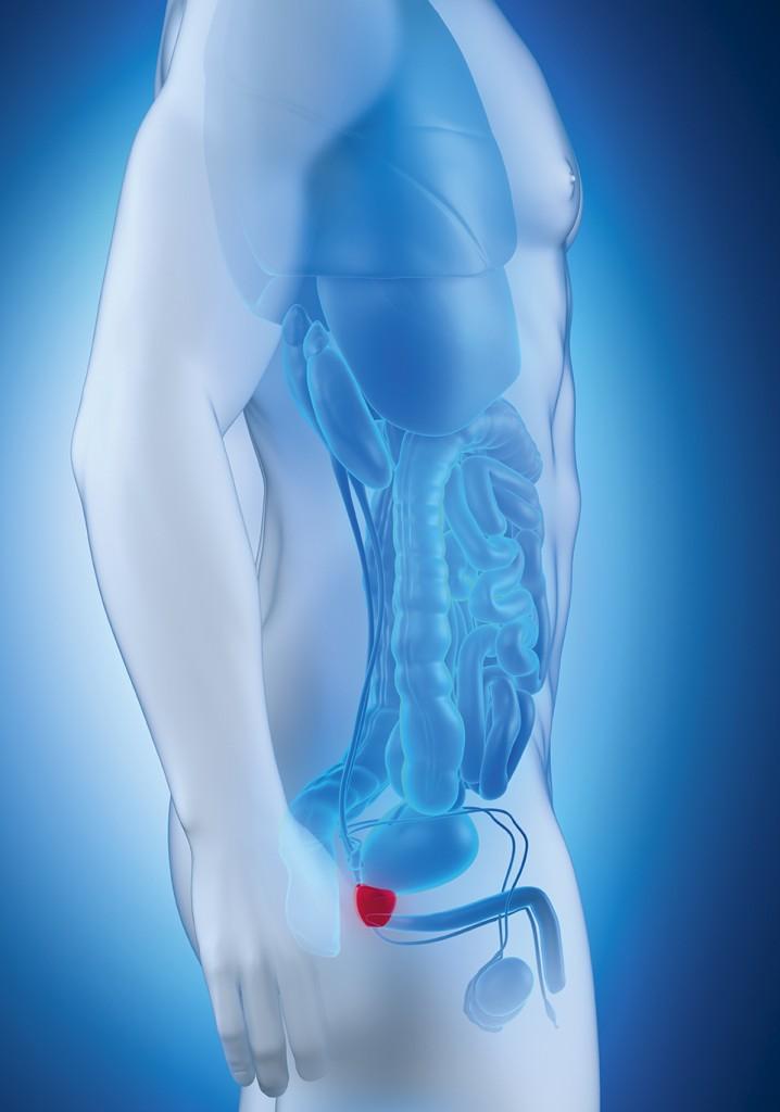 rak na prostatata