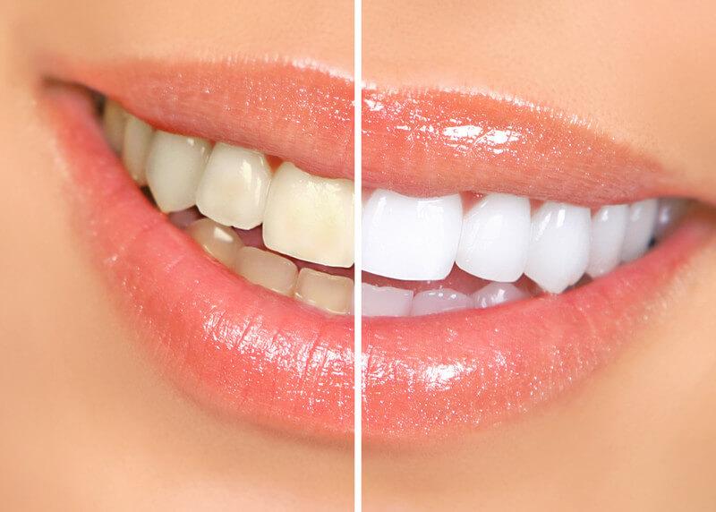 smiling-teeth