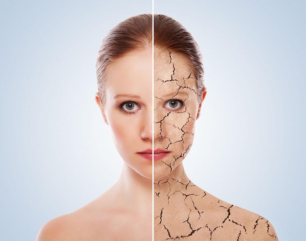 Медицивска козметика с Уреа