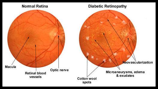 диабет, зрение