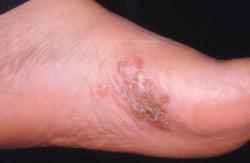 Гъбична инфекция