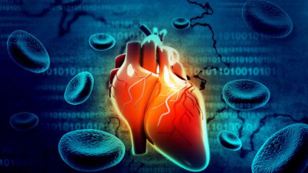 сърдечен удар