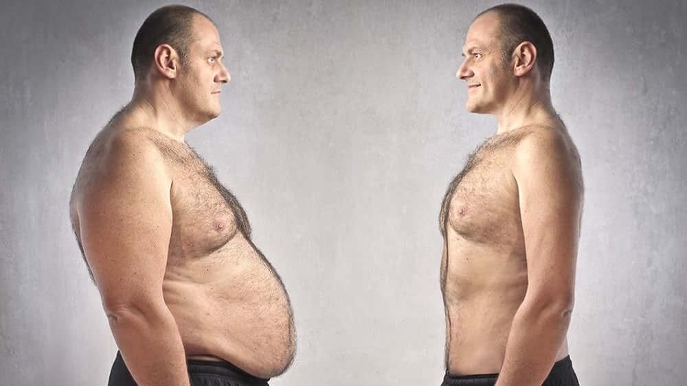 Диабет затлъстяване