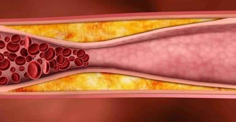 Природни средства при висок холестерол